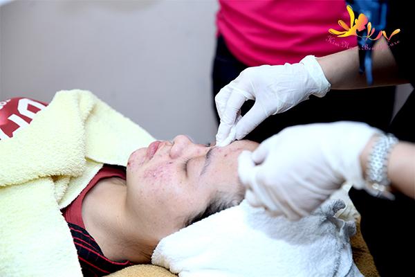 điều trị mụn tại dĩ an bình dương