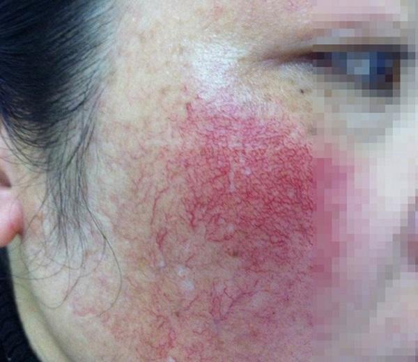 Da mặt bỏng rát, biến dạng vì dị ứng mỹ phẩm