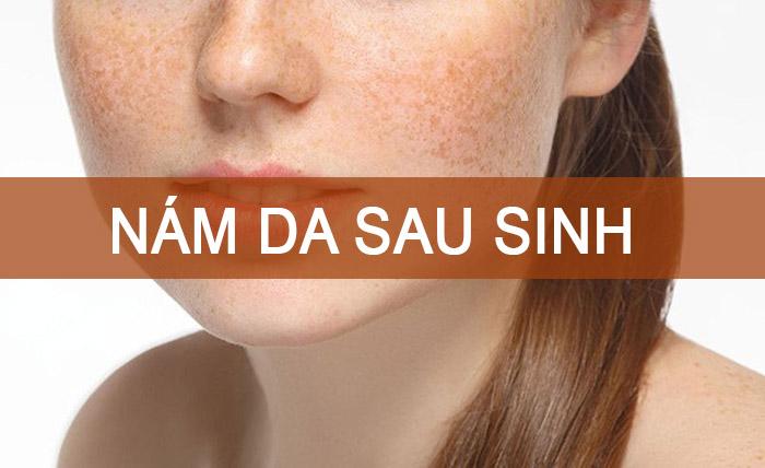 Nám da sau sinh, nguyên nhân và cách điều trị.jpg