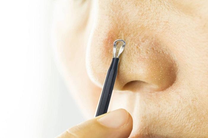 nặn mụn đầu đen tại nhà không để lại sẹo thâm