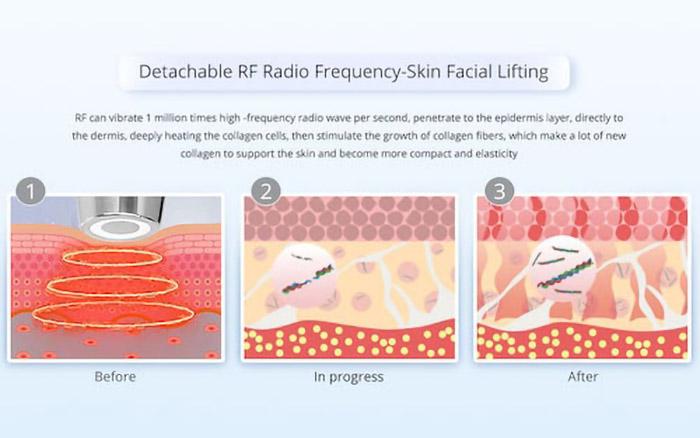 Nguyên lý hoạt động của sóng RF trên da