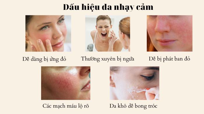 Những điều cần lưu ý khi chăm sóc da nhạy cảm tại nhà