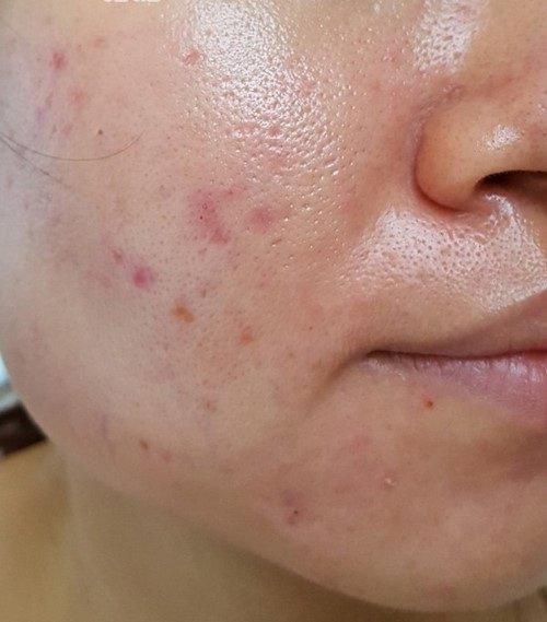 Những lưu ý khi chăm sóc da dầu nhờn 1